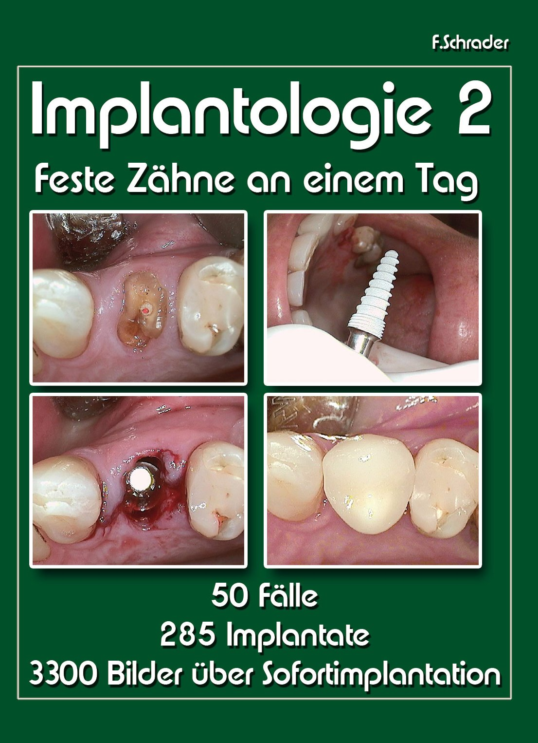 Implantologie2